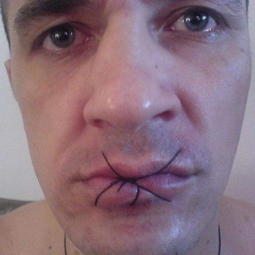 зашитый рот