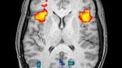Ученые нашли путь к развитию умственных сверхспособностей