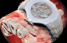 Создан первый цветной рентгеновский аппарат