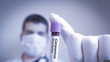 Інститут молекулярної біології НАН виготовляє експрес-тести на коронавірус