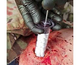 Карманный шприц, запечатывающий огнестрельное ранение за 15 секунд