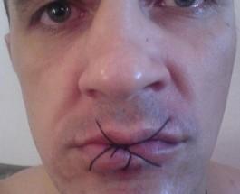 В Ужгородском СИЗО заключенные в знак протеста зашили себе рты